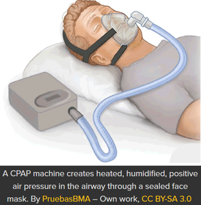 CPAP machine creates heated, humidified, positive air pressure in the airway through a sealed face mask. By PruebasBMA